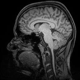 Brain researchers pinpoint gateway to human memory