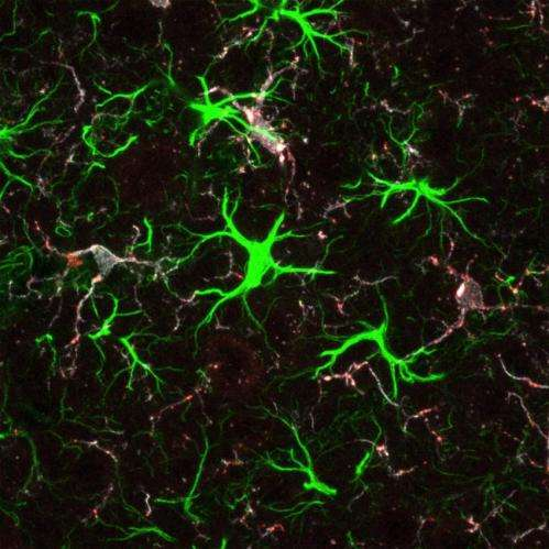Huntington's disease protein helps wire the young brain