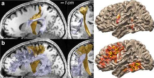 Scientists map white matter connections within the human brain