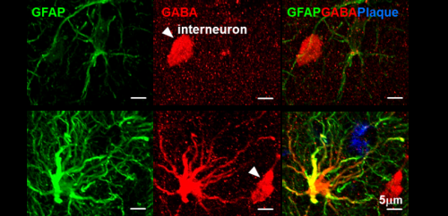 Discovery of new drug targets for memory impairment in Alzheimer's disease