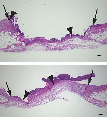 Understanding aspirin's effect on wound healing offers hope for treating chronic wounds