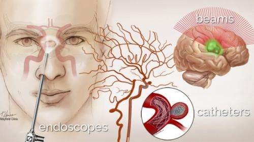 Brain surgery through an incision the size of a pinprick