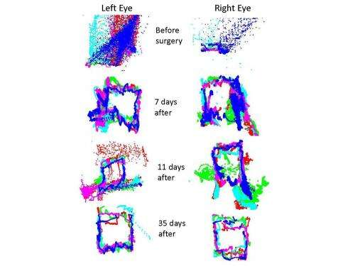 New technology advances eye tracking as biomarker for brain function and brain injury
