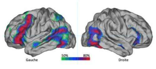 A dominant hemisphere for handedness and language?