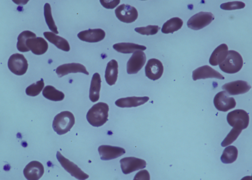 Adults stop anti-rejection drugs after stem-cell transplant reverses sickle cell disease