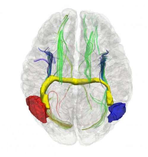 Alternative pathways let right and left communicate in early split brains