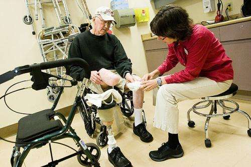 Amputees found to shy away from prosthetics