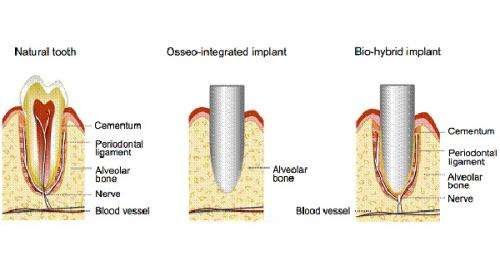 Bio-hybrid dental implant that restores the physiological tooth functions