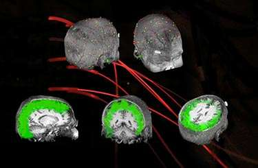 Controlling brain waves to improve vision