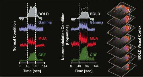 Dopamine leaves its mark in brain scans