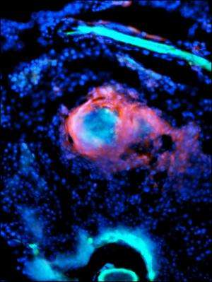 Drugs to block angiogenesis could provide new treatment for TB