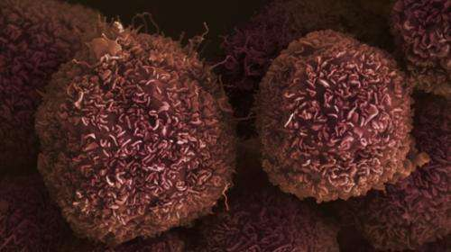Four in 10 pancreatic cancers could be prevented by lifestyle changes