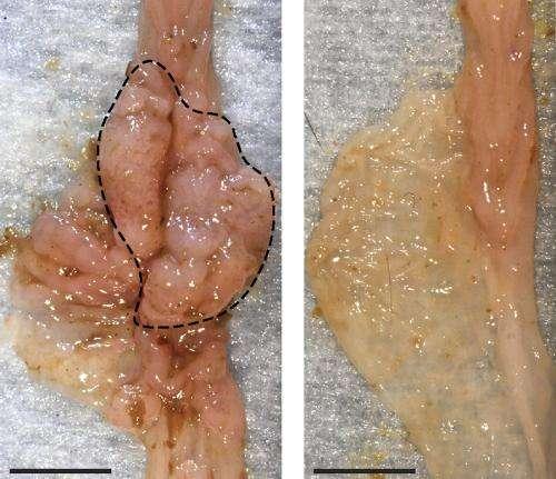 Gut microbes spur development of bowel cancer