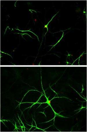 Heart drug may help treat ALS, mouse study shows