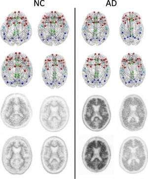 Imaging shows brain connection breakdown in early Alzheimer's disease
