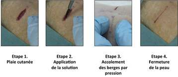 Innovative strategy to facilitate organ repair