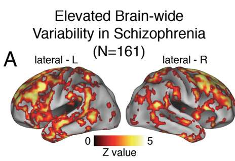 In resting brains, Yale researchers see signs of schizophrenia