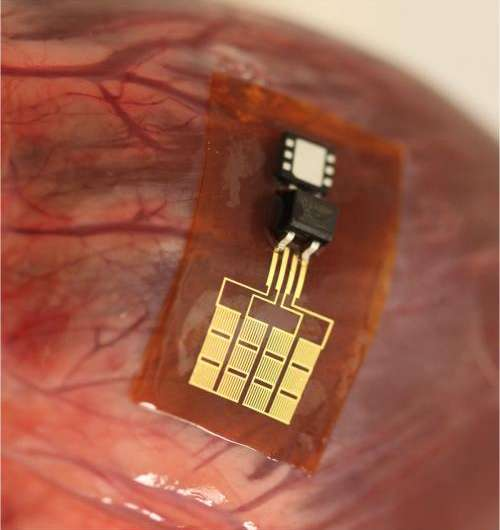 Team builds implantable piezoelectric nanoribbon devices strong enough to power pacemaker