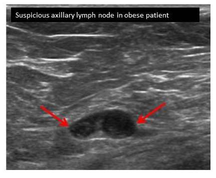 Lymph node ultrasounds more accurate in obese breast cancer patients