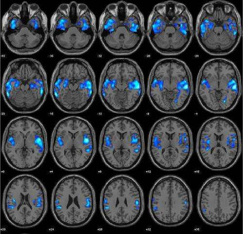 Making people smarter through brain stimulation