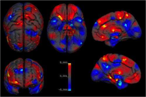 Males and females differ in specific brain structures