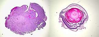 Melanoma of the Eye Caused by Two Gene Mutations