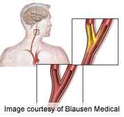MRI evaluation of carotid plaque could help define CV risk