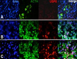 Mutations drive unrestrained secretion