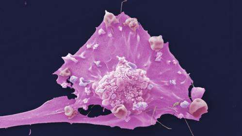 New evidence links smoking to postmenopausal breast cancer risk
