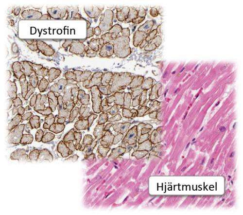 New hope in fight against muscular dystrophy