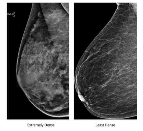 Next steps uncertain for women with dense breasts