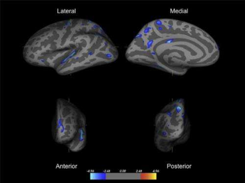 Orphanage care linked to thinner brain tissue in regions related to ADHD