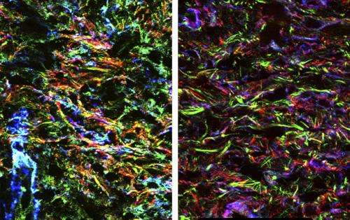 Over-organizing repair cells set the stage for fibrosis