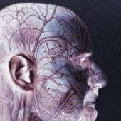 Partial skull removal may save older patients' lives after massive stroke