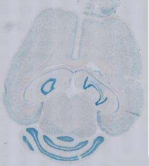 Penn-Dresden study blocks multiple sclerosis relapses in mice