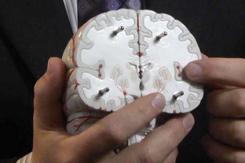 Precise brain mapping can improve response to deep brain stimulation in depression