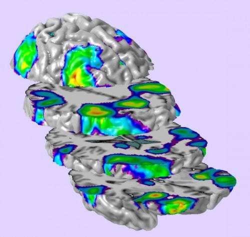 Prenatal alcohol exposure alters development of brain function