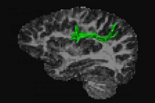 Quality of white matter in the brain is crucial for adding and multiplying