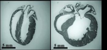 Researchers explore what happens when heart cells fail