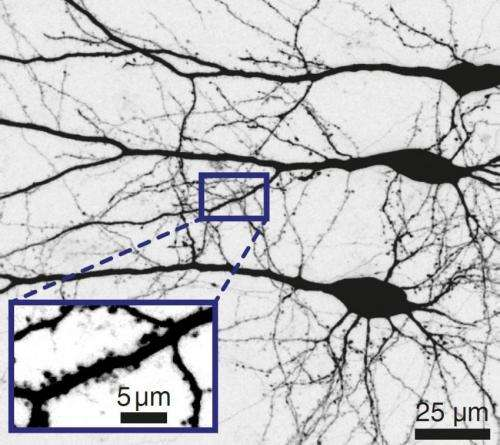 Science: Switching brain cells with less light