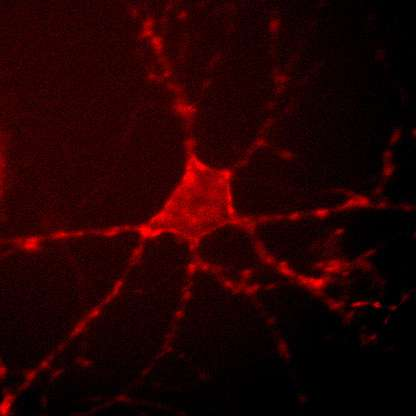 Sensing neuronal activity with light