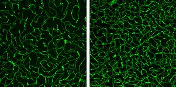 Stimulation and deprivation alter vascular structure in the brain
