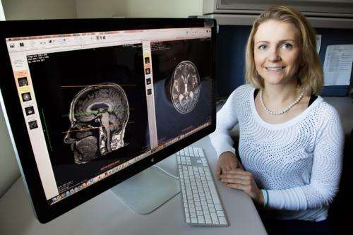 Study links physical activity in older adults to brain white-matter integrity