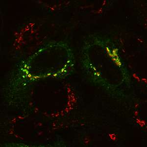 Surprising culprit found in cell recycling defect