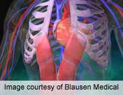 Variation in use of imaging tests in newly diagnosed heart failure