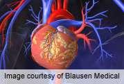 Visceral fat key marker for cardiometabolic risk