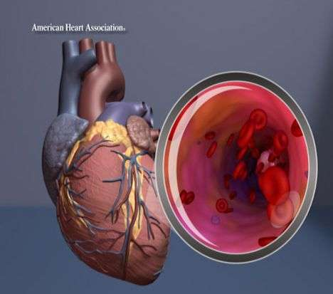 Young women fare worse than young men after heart attack