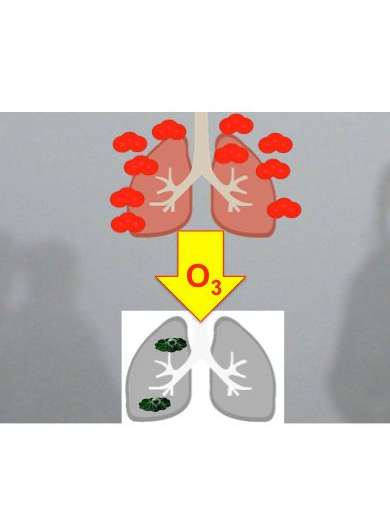 New research finds ozone in smog may cause asthma