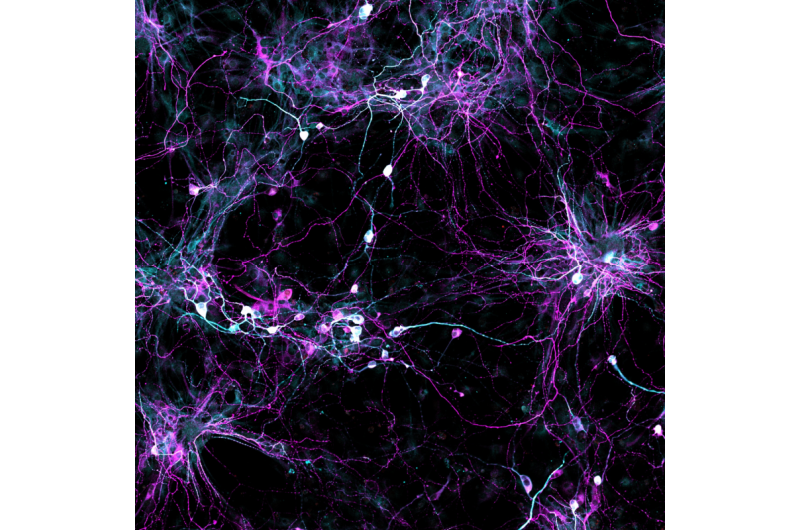 Researchers learn how to grow old brain cells