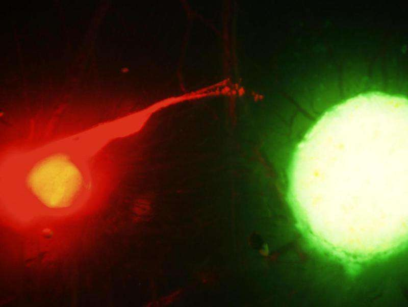 Scientists observe deadly dance between nerves and cancer cells